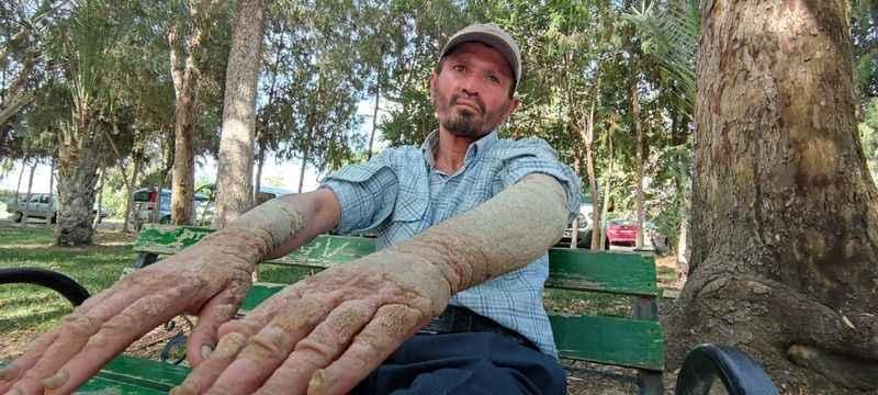 Gazipaşa'da yaşayan sedef hastasının dramı! 26 yıldır şifa arıyor