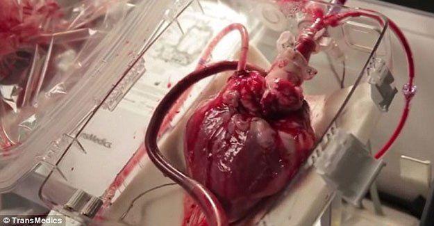Tıp mucizesi ''Kalp kutusu''