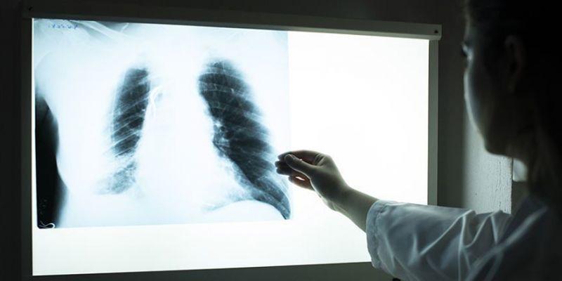 Koronadan ölen hastanın akciğerlerini paylaştılar
