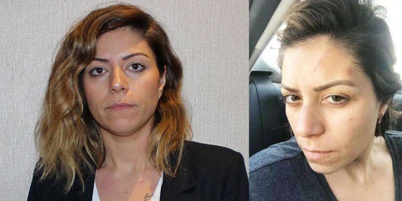Boşandığı eşinden şiddet gören avukat isyan etti: Tutuklama tedbiri ben öldükten sonra mı uygulanacak?