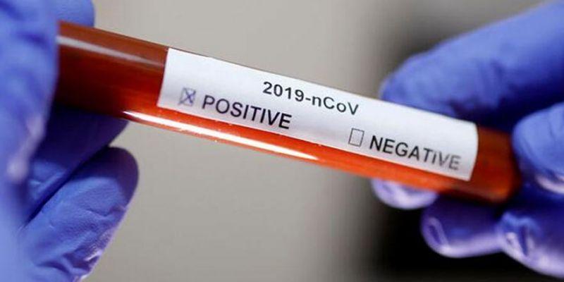 Sancaktepe Futbol Kulübü'nde 9 koronavirüs vakası