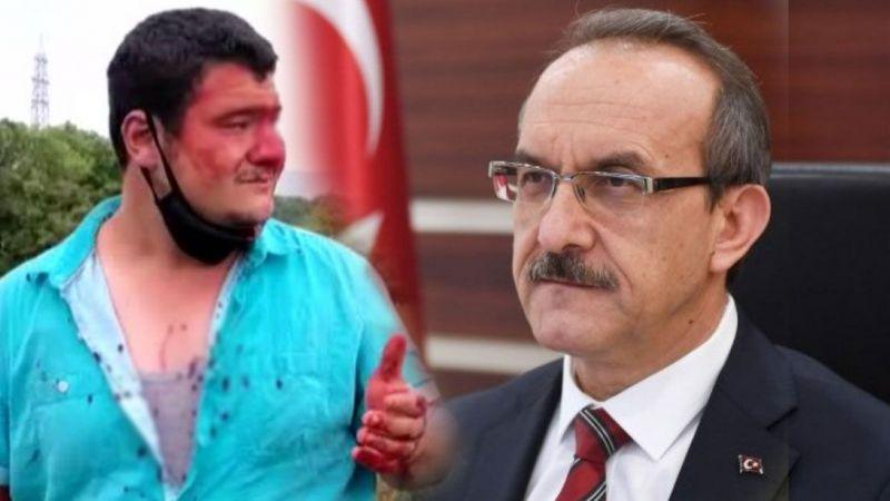 Vali Yavuz: Ekmeğinin peşinde olan muhabire saldırı hepimizi üzdü