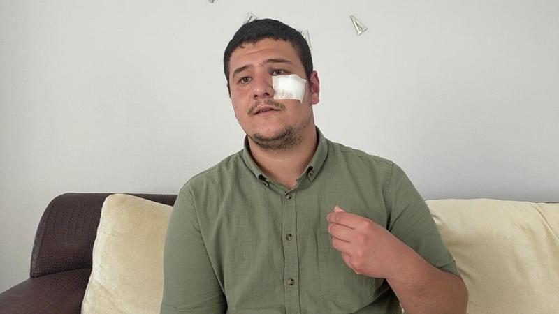 """Saldırıya uğrayan muhabir Akşener'i yalanladı: """"Kimse aramadı"""""""