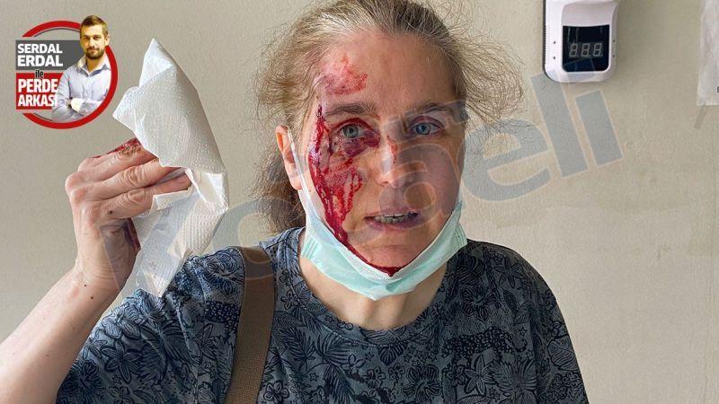 Köpeklerin saldırdığı kadın düşüp kafasını taşa vurdu