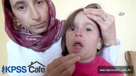 Küçük Kızın Dişleri Eriyor