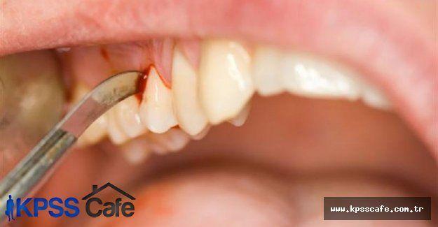 Pasif Sigara İçicileri Diş Hastalıkları Yaşıyor!