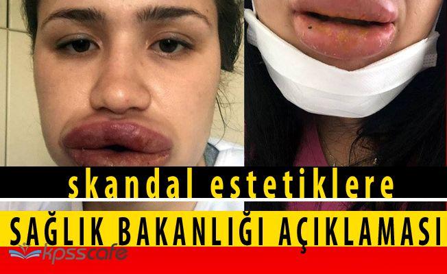 Sağlık Bakanlığı'ndan Skandal Dudak Dolgularına İlişkin Açıklama!