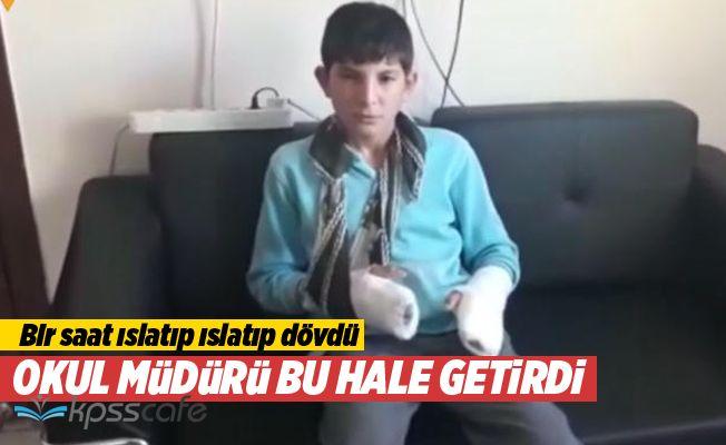 Okul Müdürü Çocuğun Parmağını Kırıp Bileklerini Çatlattı
