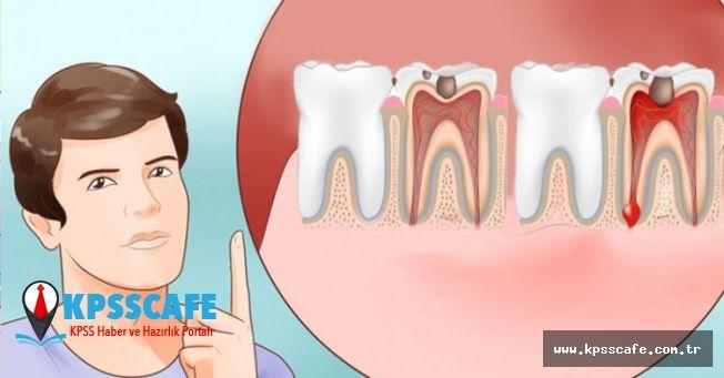 Diş Ağrısına Ne İyi Gelir? Evde Uygulanabilecek Basit Yöntemler!