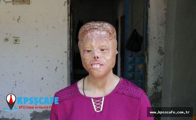 Sağlık Bakanı Koca'dan yüz nakli olmayı bekleyen Leyla'ya destek: Nakil için donör bekleniyor
