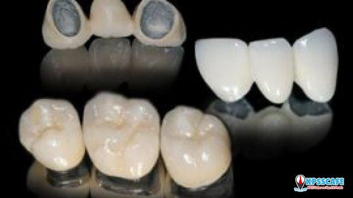İzmir'de Profesyonel Diş İmplant Kliniği İçin Doğru Adres