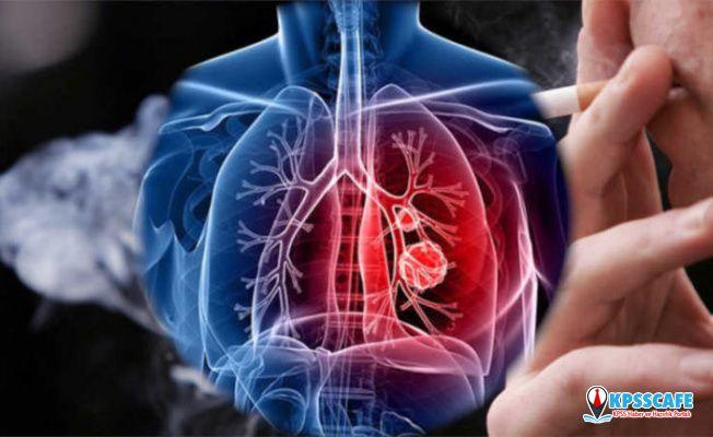 Akciğer Kanseri Önlenebilir Bir Hastalıktır!