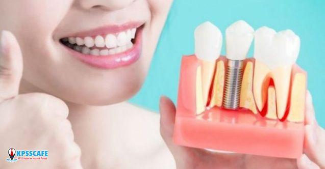 Dişlerin Sağlığı İle Gülüşleriniz Güzel