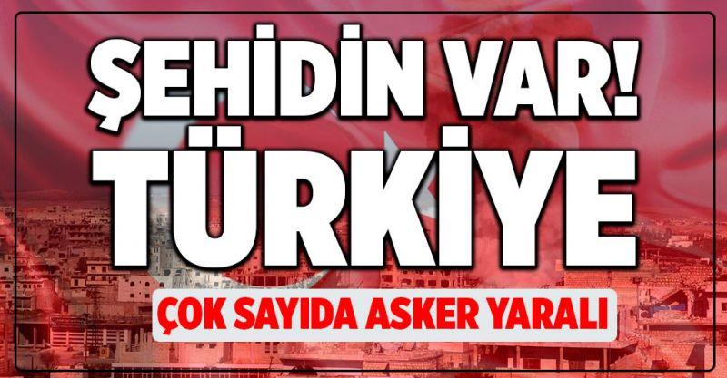 Son Dakika! Şehidin Var Türkiye! Çok Sayıda Yaralı Asker Var...