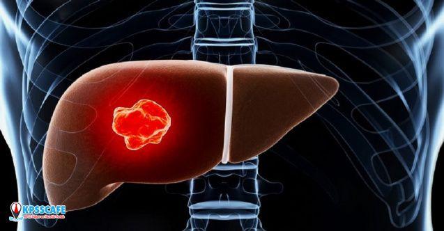 """""""Diyabet karaciğer kanseri riskini artırıyor"""""""