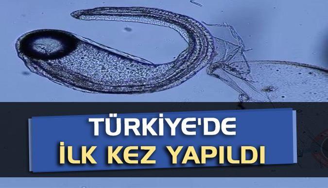 Türkiyede ilk kez yapıldı