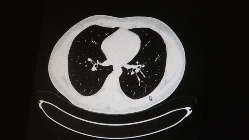 Akciğer tomografisi korkunç gerçeği gözler önüne serdi!