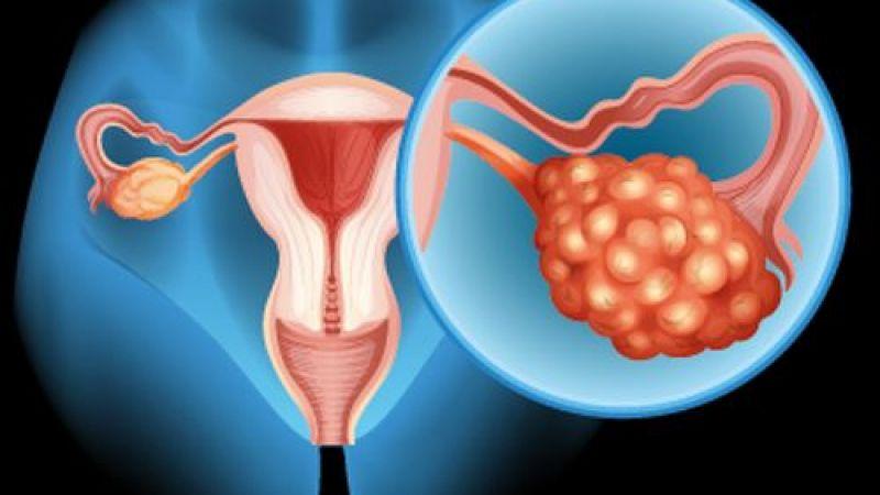 Yumurtalık kanserinin belirtileri neler