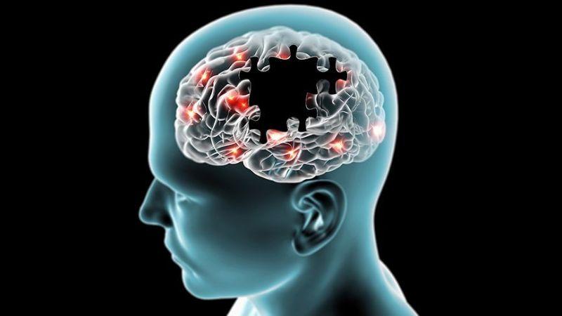 Alzheimer'ı önlemenin kanıtlanmış en etkili 10 yolu