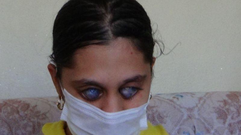 Genç Ümran'ı görenler gözlerine inanamıyor   Son Dakika Haber