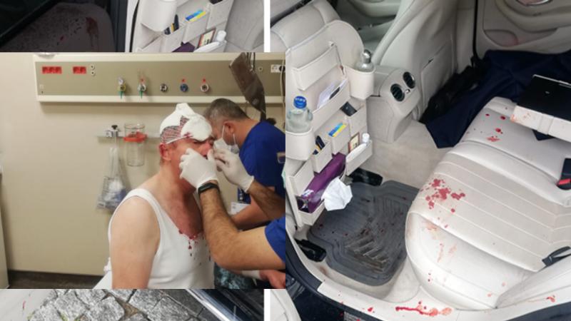 Gelecek Partisi Genel Başkan Yardımcısı Selçuk Özdağ silahlı ve sopalı saldırıya uğradı