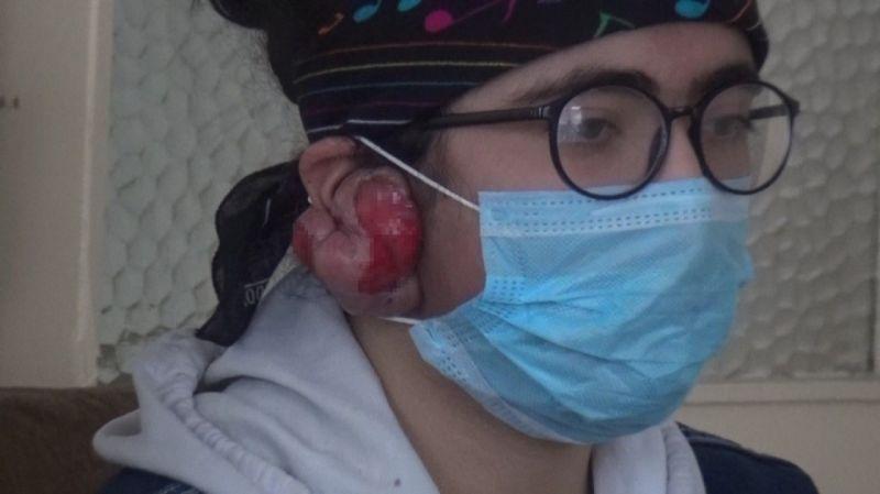 Erzincan'da yaşayan Yağmur'un 7 yaşında taktığı küpenin alerji yapması hayatının felaketi oldu