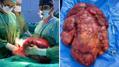 Safra kesesi şikayeti ile geldi, karnından 15 kilonun üzerinde tümör çıktı |Son Dakika