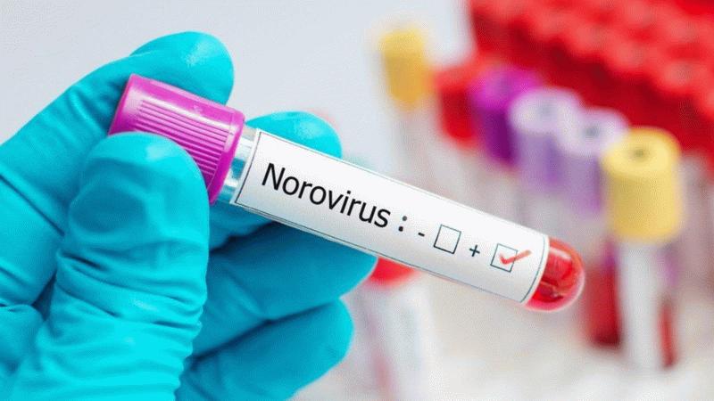 Çocuklar arasında yayılıyor! Salgın olabilir: Bilim Kurulu Üyesi Prof. Dr. Yavuz'dan Norovirüs uyarısı: