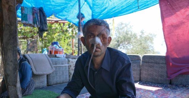 Dişini çektirdikten sonra gözünü kaybettiği iddiası