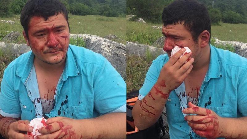 Lütfü Türkan'ın şoförü basın mensubunu darp etti