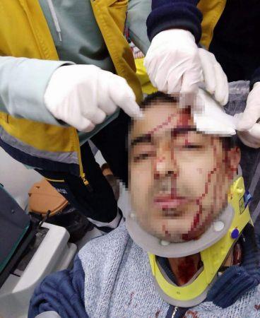Amasya'da imam tabureyle müezzine saldırdı. Müezzinin kafasına 10 dikiş atıldı.