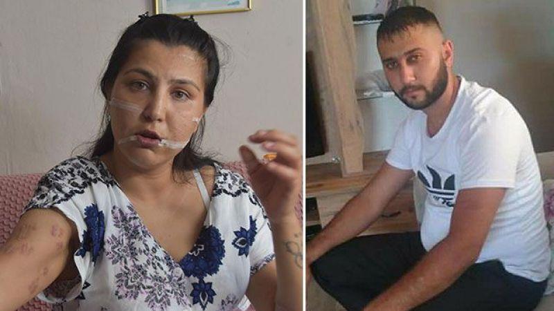 104 Yerinden Bıçakladığı Çocuğunun Annesi Can Çekişirken Başında Sigara İçti