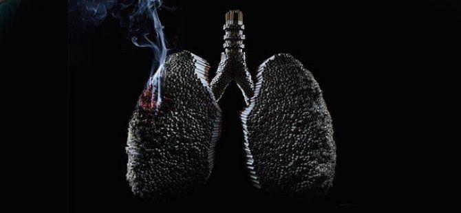 Akciğer Kanseri, En Sık Görülen Kanserlerin Ölümünden Daha Fazla Ölüme Yol Açıyor!