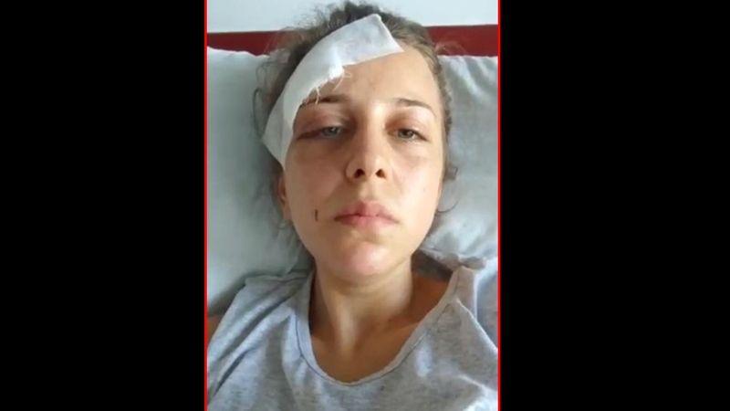 Bir kadın daha şiddete uğradı! Şiddet 5 saat sürdü