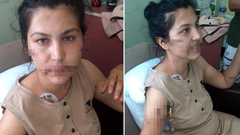 Eşini 100 defa bıçakladı genç kadın dehşeti anlattı