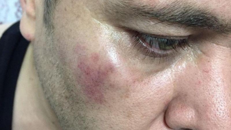 Haber takibindeki İHA muhabirine çirkin saldırı