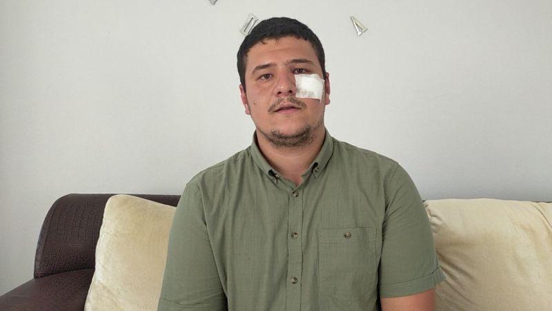 Saldırıya uğrayan gazeteci Akşener'i yalanladı