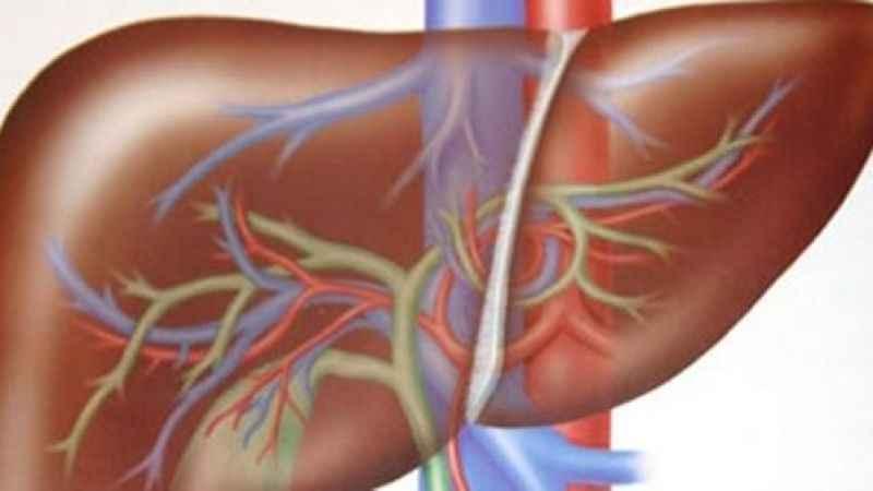 Karaciğerin alkolden sonra tedavisi