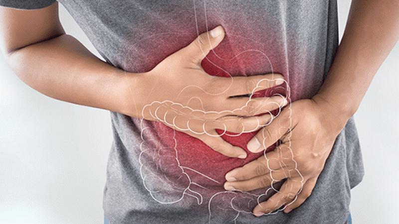 Crohn hastalığı nedir ve tedavi yöntemleri nelerdir?