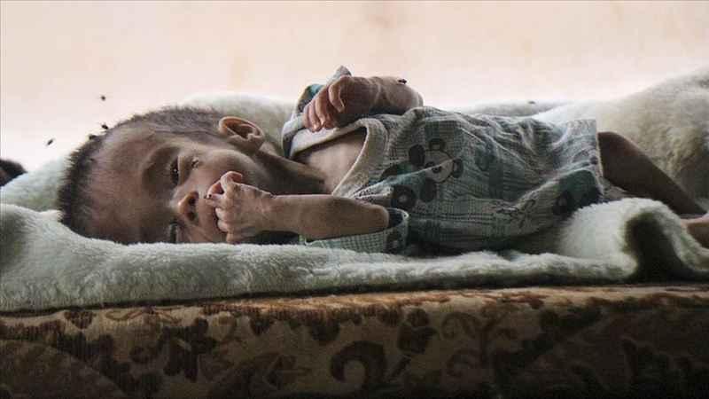 Felç riski bulunan Nur bebek yardım bekliyor