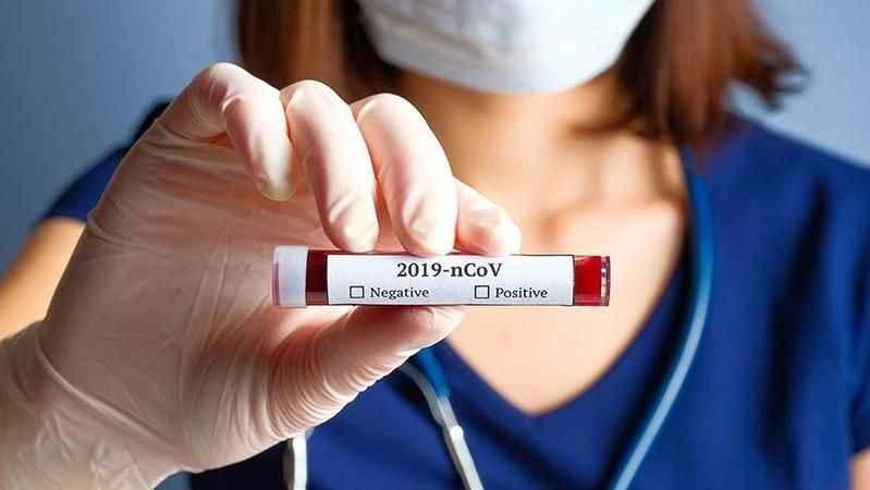 Testin negatif çıkması gerçektende virüs olmadığını mı gösteriyor?