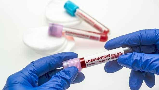 22 Mayıs koronavirüs tablosu: Vaka sayısı 8 bine düştü