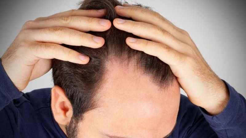 Koronavirüs saç dökülmesine neden olabiliir