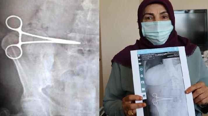 Aydın'da özel bir hastane bir kadının karnında 'Makas' unuttu!