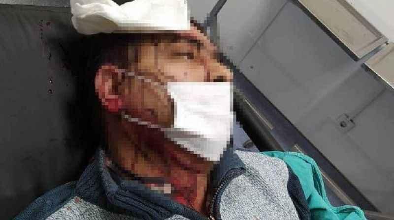Amasya'da müezzin, imamın tabureli saldırısına uğradı