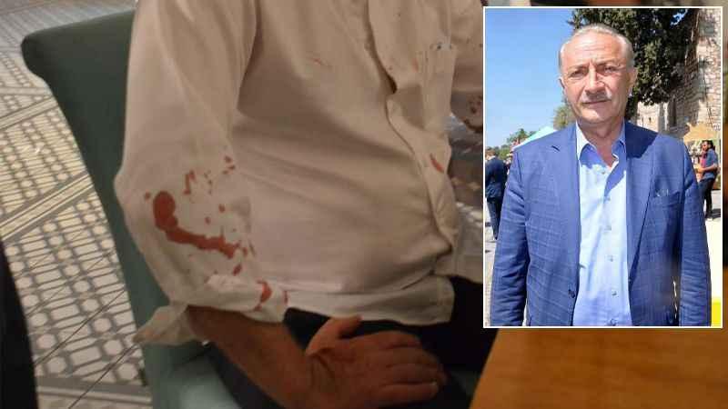 Didim Belediye Başkanı Deniz Atabay'a beyzbol sopalı saldırı