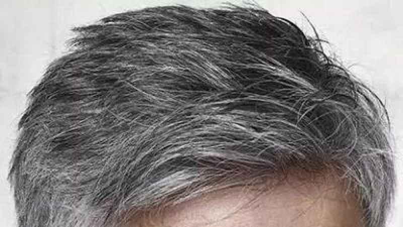 Genç yaşta saçlar neden beyazlar?