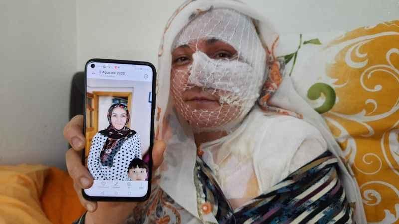 Eşinin kızgın yağ ile yaktığı kadın: Ölmek istemiyorum