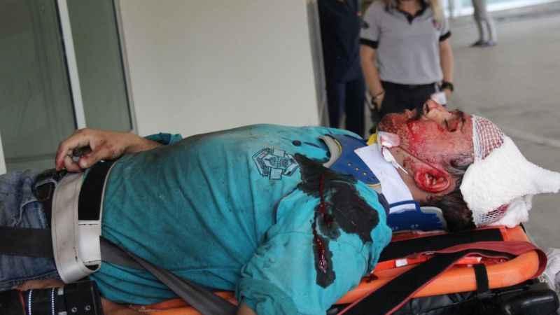 Çatı çöktü, tadilat yapan vatandaş ağır yaralandı