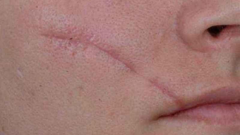 Yara ve dikiş izleri Plexr plazma enerjisi ile yok edilebiliyor
